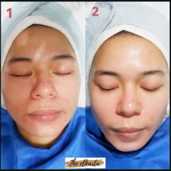 Portfolio-1-oleh-Facial-by-The-Elkarta-di-HelloBeauty