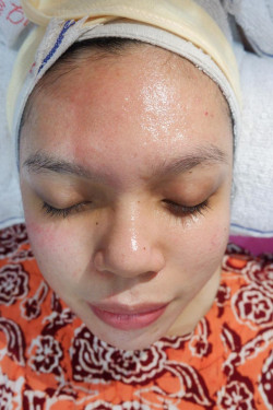 Portfolio-5-oleh-Facial-by-The-Elkarta-di-HelloBeauty
