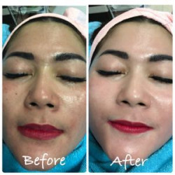 Portfolio-2-BB-Glow-treatment-for-your-face-more-glowing-oleh-Ai-Sarengat-di-HelloBeauty